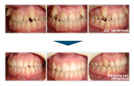 Что сделать перед удалением зуба