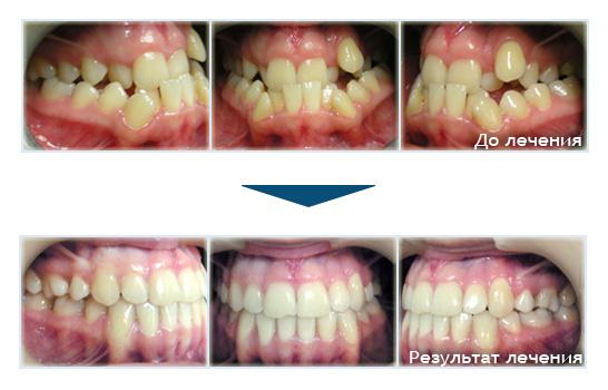 Вырывают зубы когда ставят брекеты