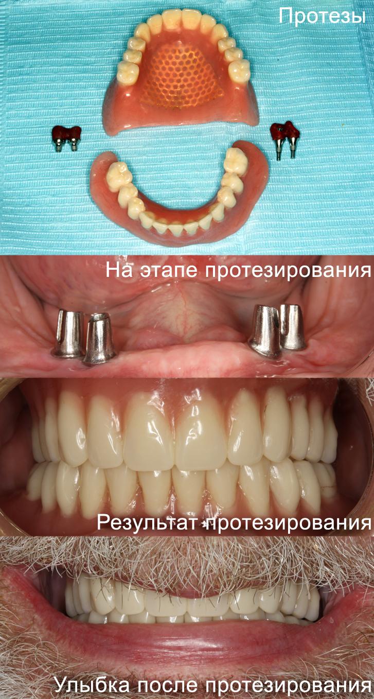 Нет верхних зубов съемный протез